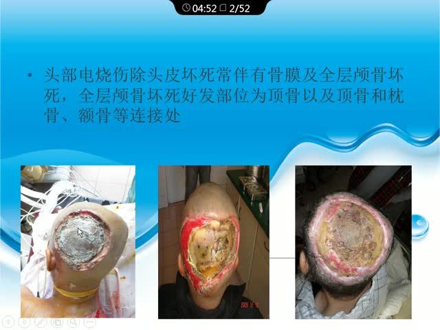 头面颈部难治性严重电烧伤创面临床分析