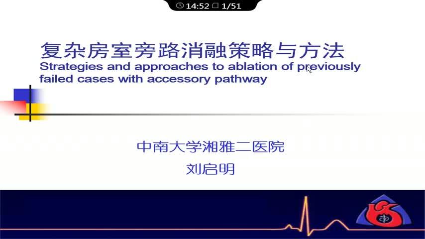 预激综合征体表心电图定位和消融