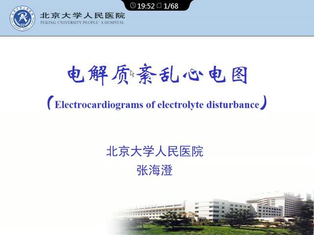 电解质紊乱与心电图