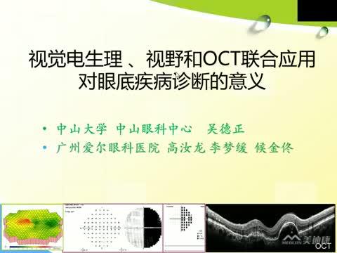 视觉电生理与OCT、视野等综合判读