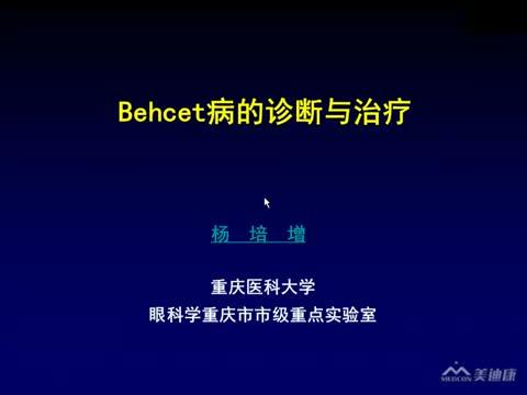 Behcet病的诊断和治疗
