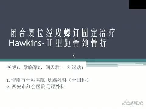 闭合复位经皮螺钉固定治疗Hawkins-Ⅱ型距骨颈骨折