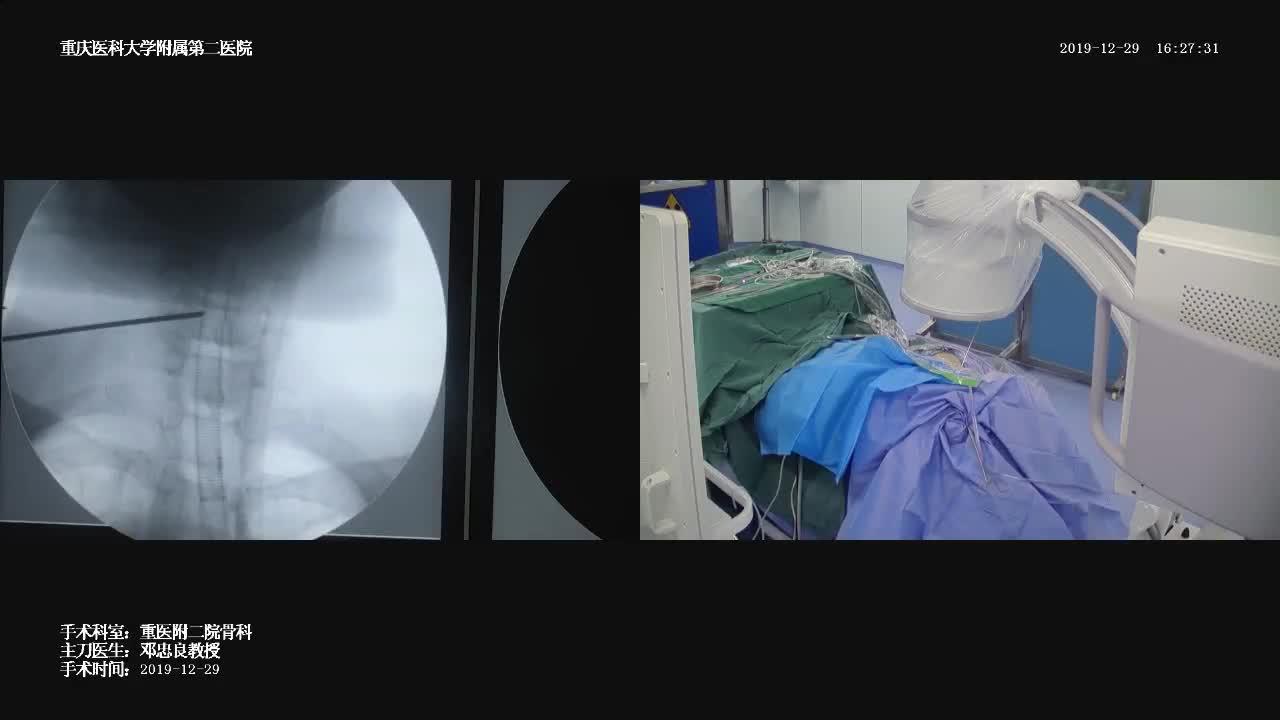 手术直播(二)