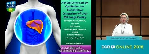 A multi-centre study: qualitative and quantitative comparison of liver MR image quality