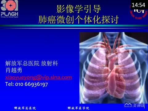 影像学引导肺癌的个体化介入治疗