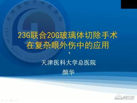 23G联合20G玻璃体切除手术在复杂眼外伤中的应用