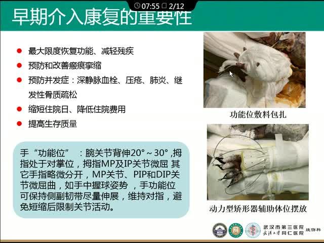 采用动力型矫形器辅助烧伤后早期手功能体位摆放疗效观察