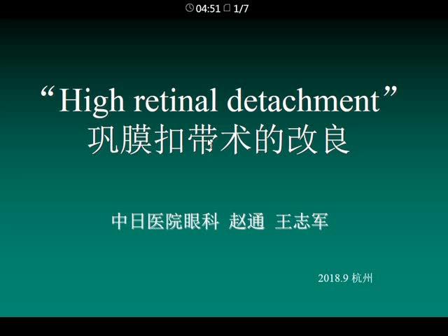 """High Retinal Detchment""巩膜扣带术的改良"