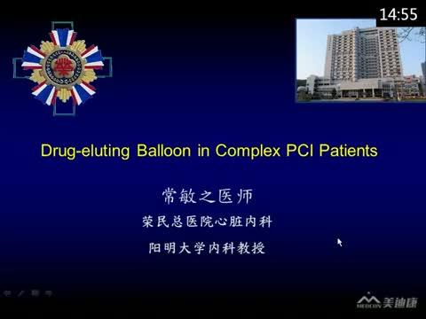 Drug-eluting Balloon in Complex PCI Patients