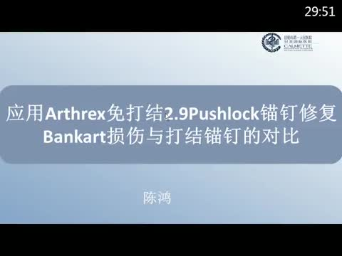 Athrex卫星会—应用Arthrex免打结2.9Pushlock锚钉修复Bankart损伤与打结锚钉的对比