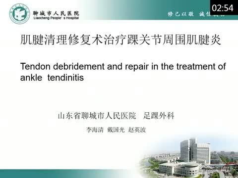 肌腱清理修复术治疗踝关节周围肌腱炎