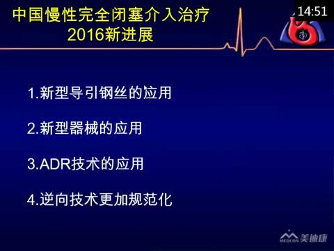 中国慢性完全闭塞介入治疗2016新进展