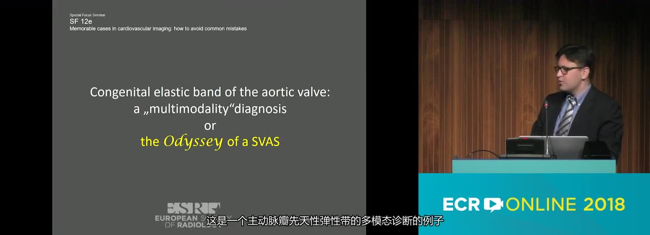 Congenital elastic band of the aortic valve: a