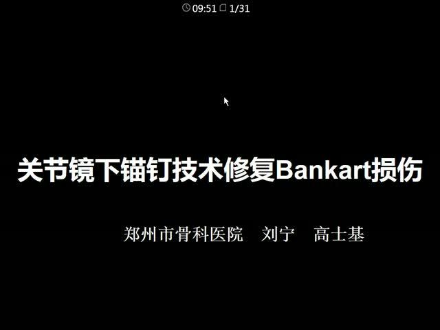关节镜下缝线锚钉技术修复Bankart损伤