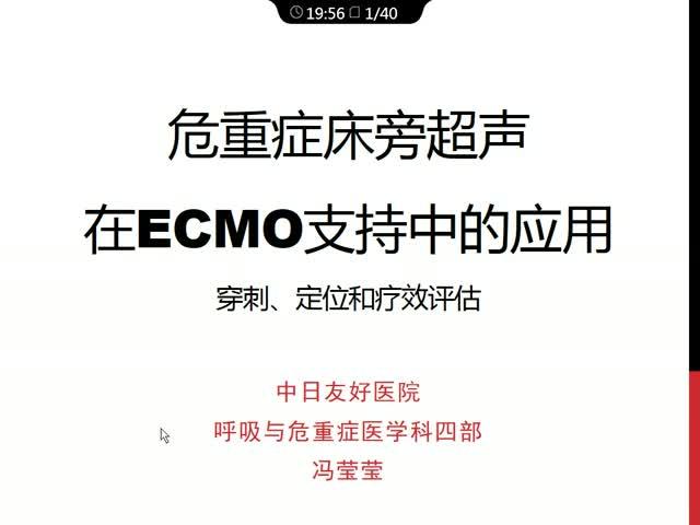 危重症床旁超声在ECMO支持中的应用:穿刺、定位和疗效评估