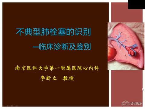 不典型肺栓塞的识别---- 临床诊断及鉴别
