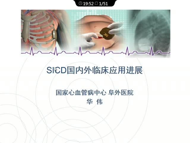 S-ICD 国内外最新进展