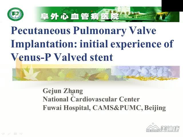 经皮肺动脉瓣支架植入术的初步临床经验