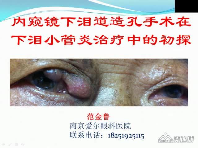 鼻腔内窥镜下泪道造孔在下泪小管炎治疗中的初探