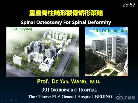 重度脊柱畸形截骨矫形策略
