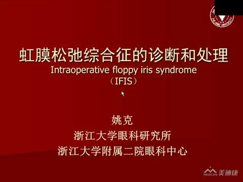 IFIS综合症的临床诊断与处理