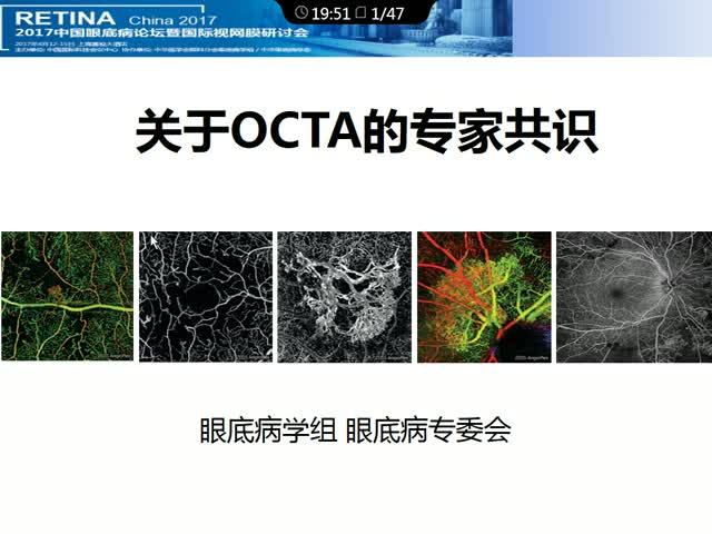 关于OCTA的临床共识
