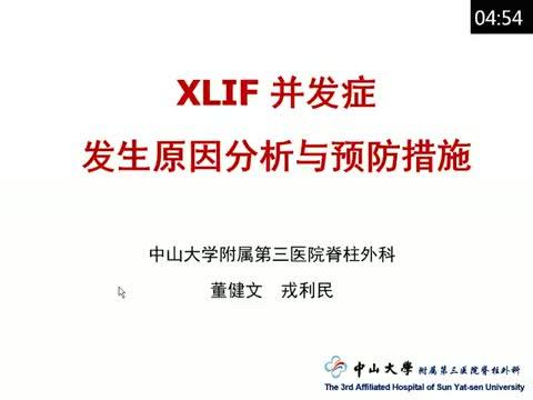 XLIF技术并发症发生原因分析与预防措施