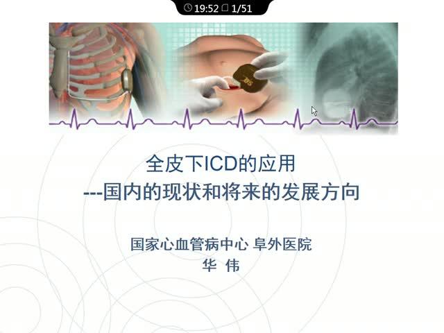 SICD在国内的应用现状及面临的问题