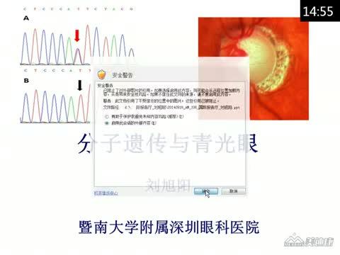 分子遗传与青光眼