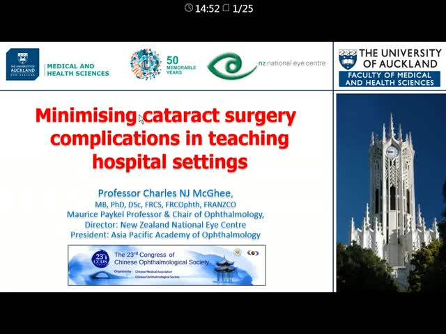 Minimising cataract surgery complications in teaching hospital settings
