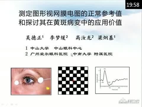 测定图形视网膜电图的正常参考值和探讨其在黄斑病变中的应用价值