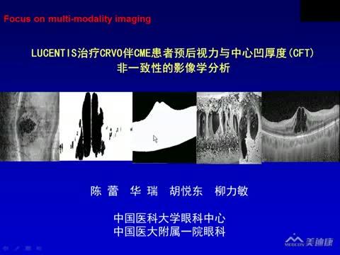 玻璃体腔内注射lucentis治疗CRVO伴CME患者预后视力与CFT非一致性的影像学分析