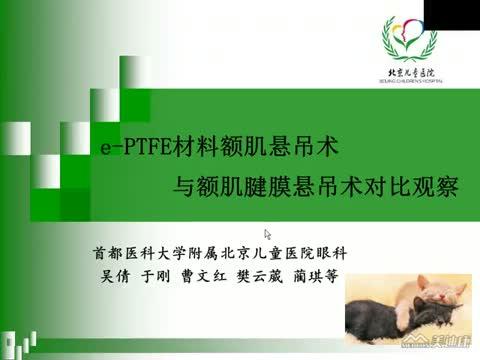 e-PTFE材料额肌悬吊术与额肌腱膜悬吊术治疗儿童上睑下垂手术疗效对比分析