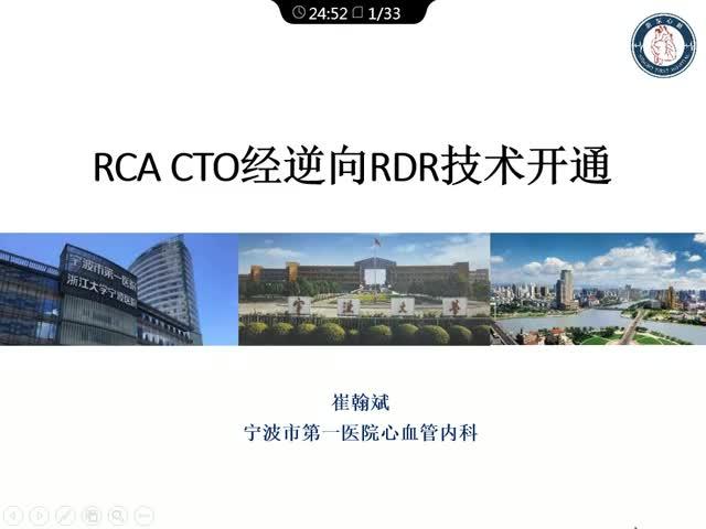 采用RDR技术开通右冠CTO