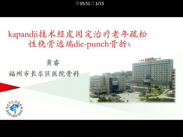 kapandji技术经皮固定治疗老年疏松性桡骨远端die-punch骨折
