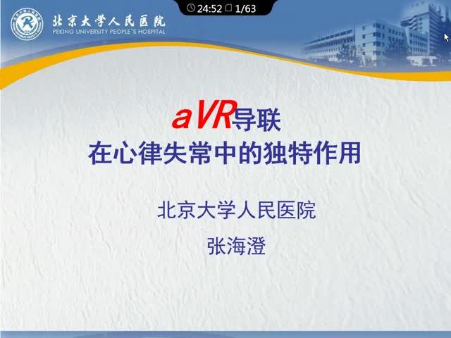 aVR导联在心律失常中的独特作用