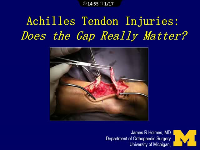 Acute Achilles Tendon Injury- Does the Gap Really Matter?