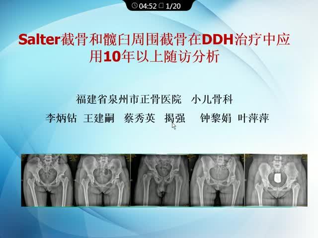 Salter截骨和髋臼周围截骨术在DDH治疗中应用10年随访分析