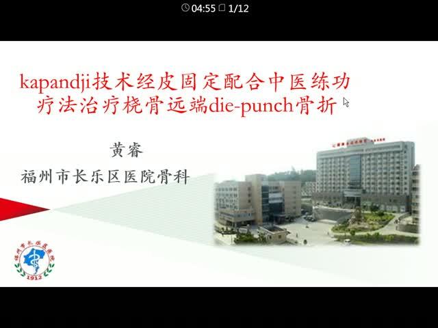 kapandji技术经皮固定配合中医练功疗法治疗桡骨远端die-punch骨折