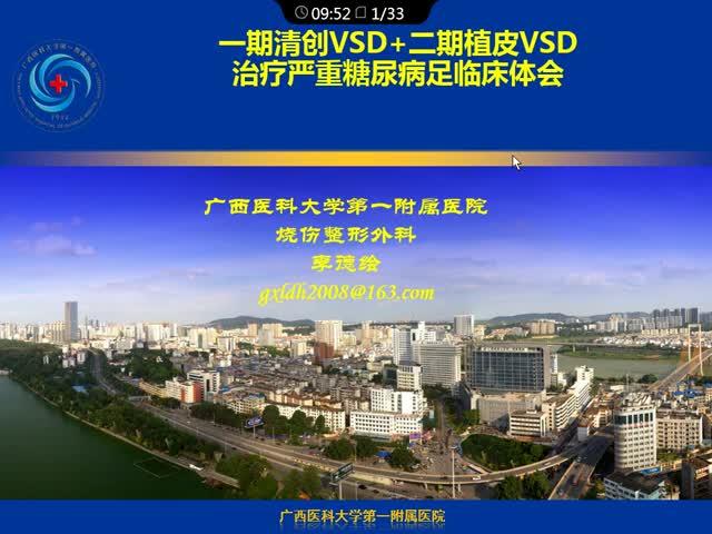 VSD负压吸引技术治疗糖尿病足临床体会
