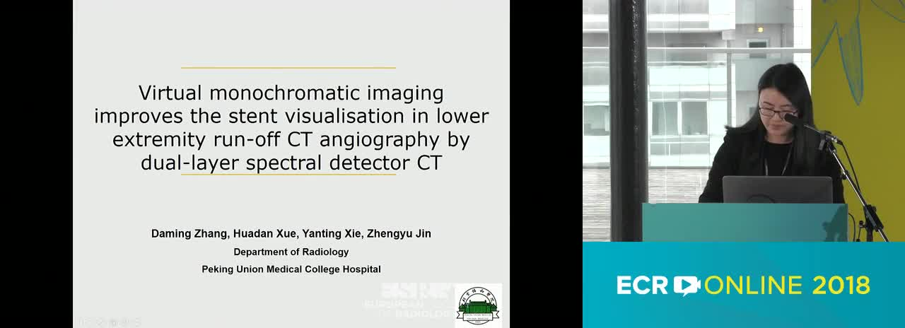 Virtual monochromatic imaging improves the stent visualisation in lower extremity run-off CT angiography by dual-layer spectral detector CT