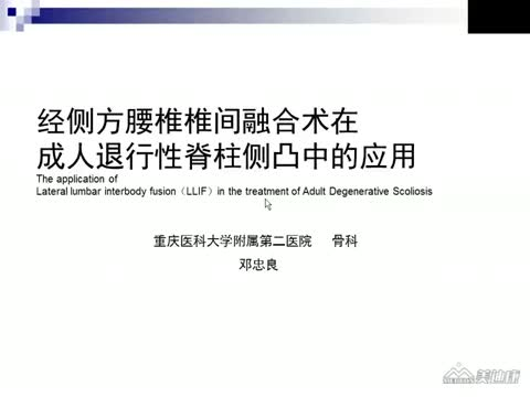 腰椎侧方融合术及临床应用