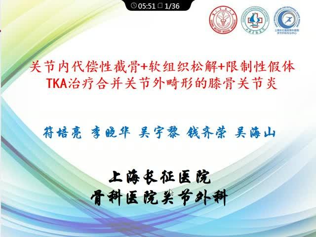 关节内代偿性截骨+软组织松解+部分限制性假体TKA治疗合并关节外畸形的骨关节炎