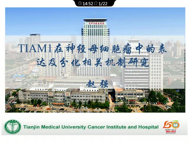 TIAM1在神经母细胞瘤中的表达及分化相关机制研究