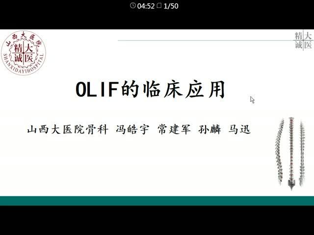 椎间孔镜结合OLIF治疗腰椎退行性疾病