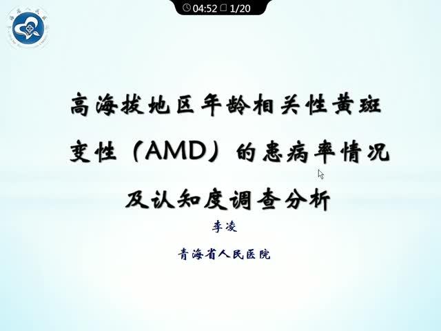高海拔地区年龄相关性黄斑变性(AMD)的患病率情况 及认知度调查分析