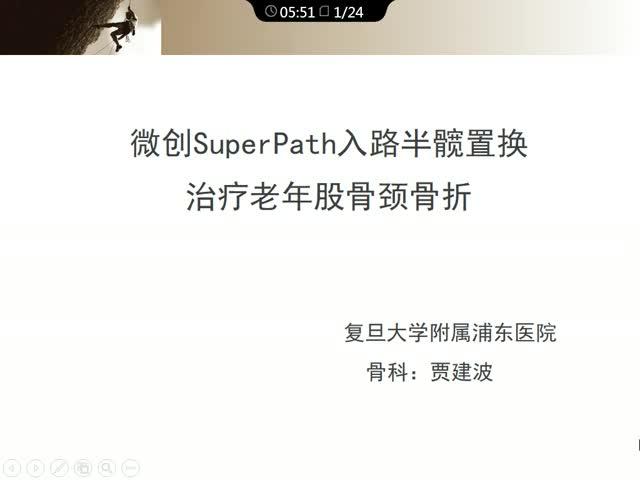 微创SuperPath入路半髋置换治疗老年股骨颈骨折