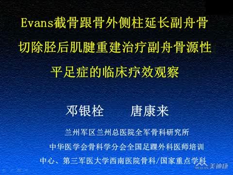 Evans截骨跟骨外侧柱延长副舟骨切除胫后肌腱重建治疗副舟骨源性平足症的临床疗效观察