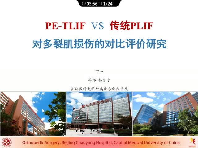 PE-TLIF术式与开放PLIF术式对多裂肌损伤的对比评价研究