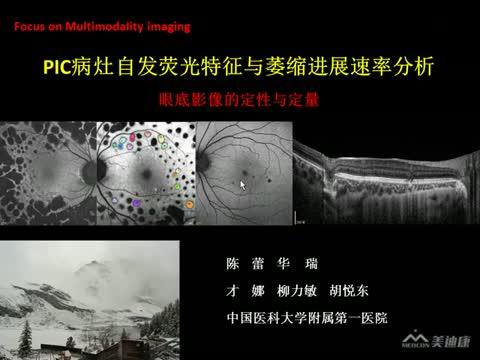 PIC病灶自发荧光特征与萎缩进展速率分析
